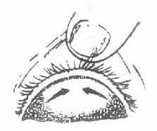 沙眼病变的发展方向