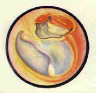 慢性化脓性中耳炎?胆脂瘤型鼓膜边缘性穿孔及肉芽