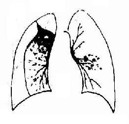 右侧气胸,右肺外上与胸侧壁有粘连