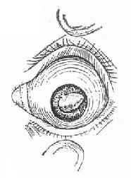 晶体嵌顿瞳孔