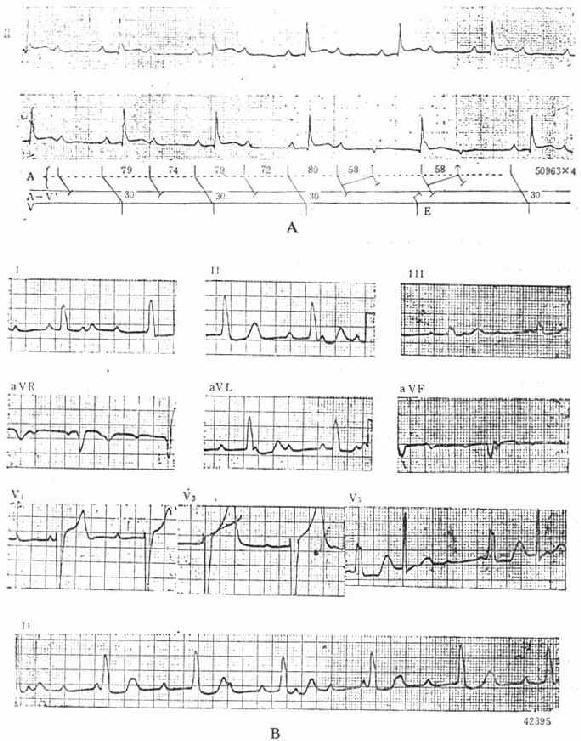 Ⅱ度及Ⅲ度房室传导阻滞的心电图