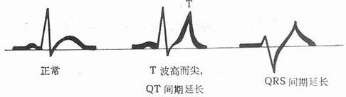 高钾血症的心电图变化