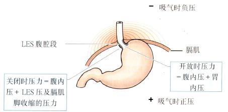 LES及其腹腔内位置