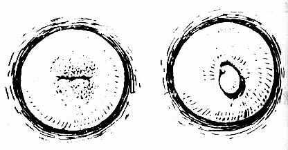 宫颈糜烂(左)与息肉(右)