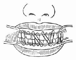 上颌骨骨折颌间牵引复位固定