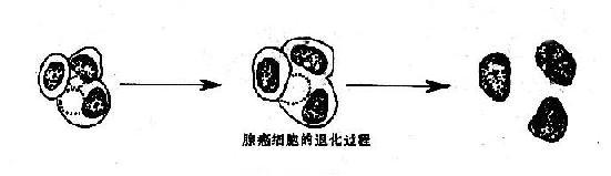 退化变性的柱状细胞与腺癌细胞示意图