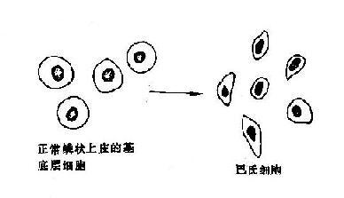 巴氏细胞示意图