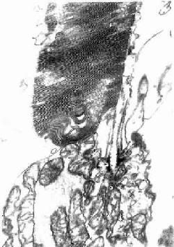 人视杆细胞外突电镜像