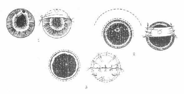 三种不同部位的角膜溃疡,采取不同的结膜瓣遮盖法
