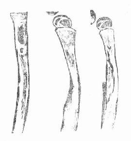股骨化脓性骨髓炎