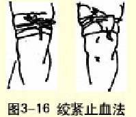 絞緊止血法