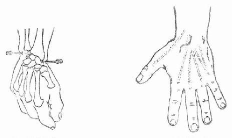 腕关节穿刺及切开引流