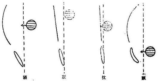 大脑各区占位透明隔和第三脑室移位关系