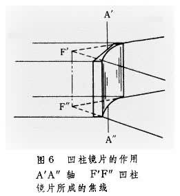 凹柱镜片的作用.JPG