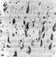 神經原纖維纏結
