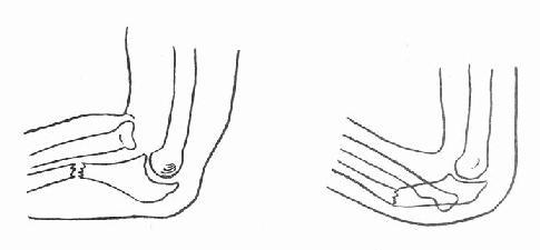 尺骨干上段骨折合并桡骨头脱位