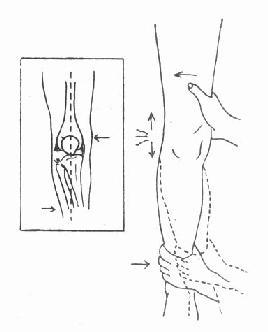 侧压试验:外侧副韧带 完全断裂,有异常内收活动度