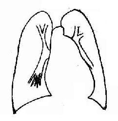 动脉导管未闭症,并发肺循环高压