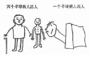 一个半球与两人半球病人的画人测验
