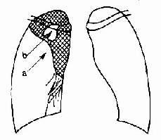 右肺上葉肺癌合併肺不張 下緣呈「S」形(a)肺漲中有壞死空洞(b)