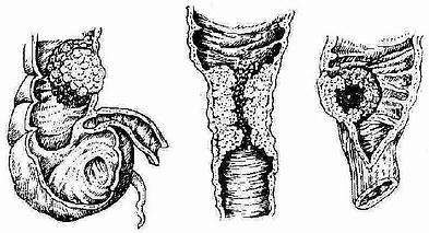 结肠癌形态分型