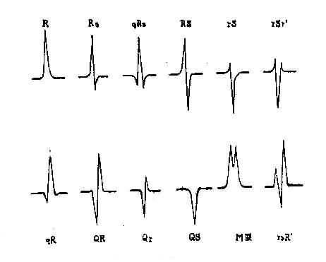 QRS波群的命名