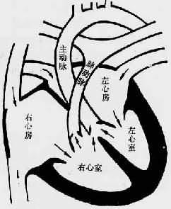 Fallot四联症模式图