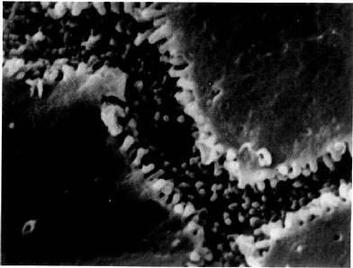 大鼠肝冷冻割断扫描电镜像示胆小管