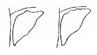 肝癌 示肝表面高低不平或呈结节状
