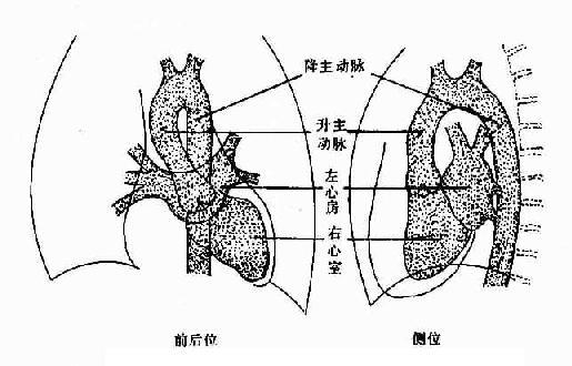正常左心房、左心室、主动脉造影示意图