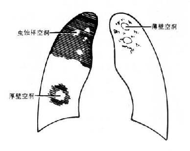 右侧气胸伴右下胸膜粘连