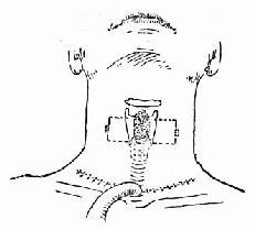 颈部低位横切口气管切开