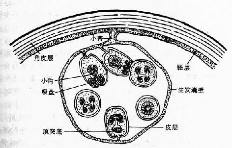 棘球蚴及生发囊模式图(仿Morseth)