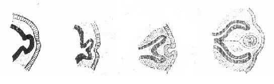 视杯和原始晶体