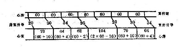 Wenckebach现象与心室率规律性变化示意图