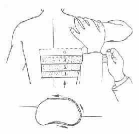 肋骨骨折胶布固定法