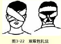 双眼三角巾包扎法