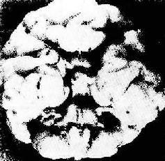 三体(Patau)综合征脑畸形
