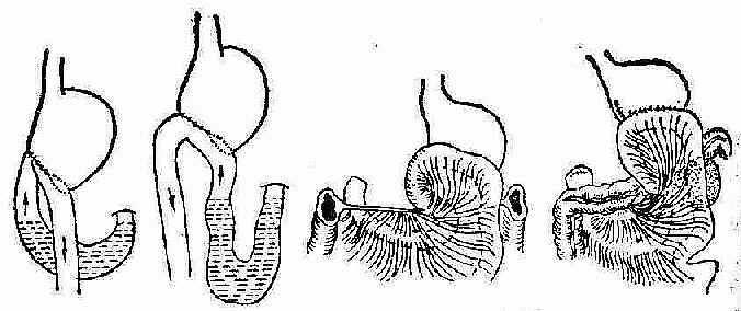 输入空肠襻发生梗阻的几种原因