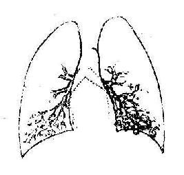 左下囊状支气管扩张支气管造影所见