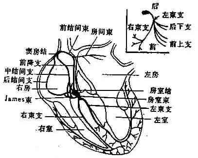 心脏传导系统示意图(右上图左束示意图)