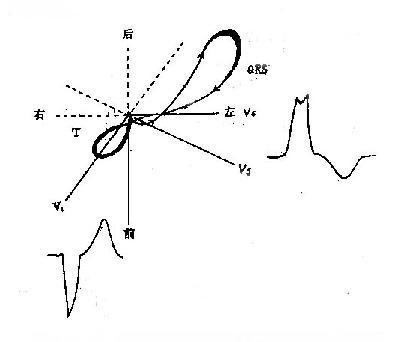 左束支传导阻滞的横面QRS向量环示意图