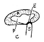 肾积水伴结石声象图