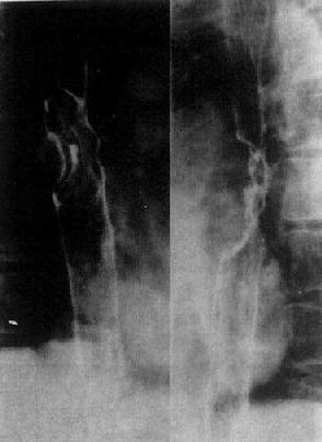 食管癌(增生型)食管中段显示不规则