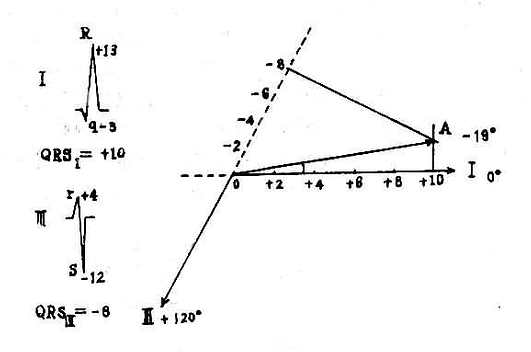 振幅法测定心电轴
