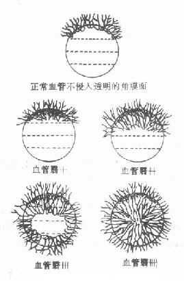 沙眼角膜血管翳