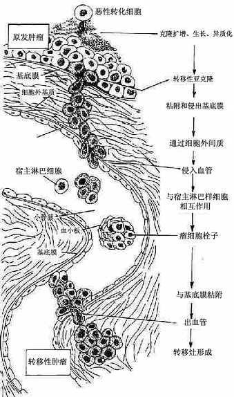 恶性肿瘤浸润和转移机制