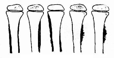 骨膜增殖类型