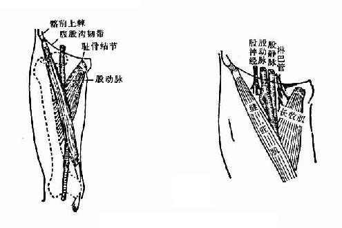 股静脉注射操作方法