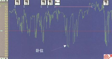 GERD患者24小时pH监测图